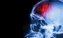 Head And Neck Training To Prevent Concussion