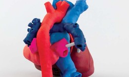 3D printed hearts to improve congenital heart surgery